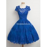 Vintage Scalloped-Edge Cap Sleeves Lace Blue Short Formal Dress Prom Cocktail Dress Party Dress New